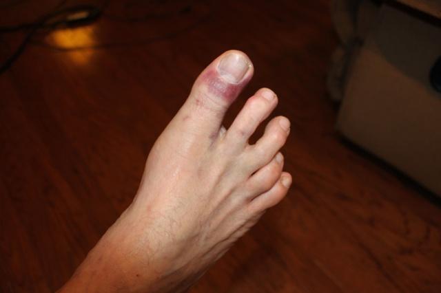 Big toe 1