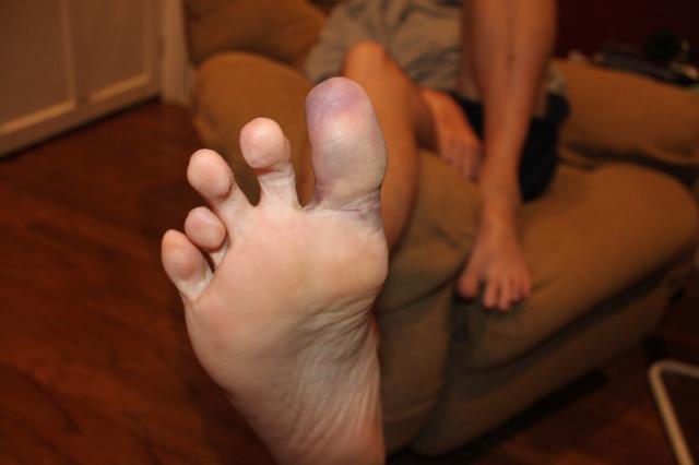 Big toe 2